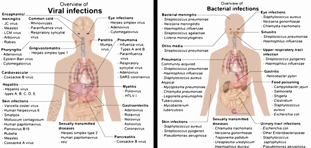 Viral and Bacterial Infections Body Illustration 2-26-16